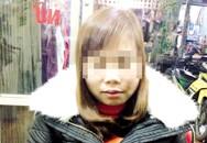 Tâm sự buồn của cô gái bị hủy hôn vì khuôn mặt xấu sau tai nạn