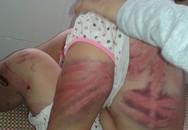 Phẫn nộ những phụ nữ hút chết dưới tay chồng tàn bạo