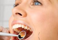 Dấu hiệu nhận biết viêm tủy răng