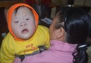 Vòng tay Nhân ái: Nhờ độc giả, bé 6 tháng bị tim bẩm sinh được mổ miễn phí