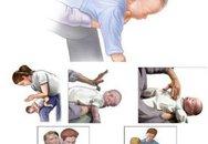Niềm vui của bác sĩ cứu được cháu bé đã ngừng thở vì sặc sữa