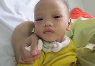 Vòng tay nhân ái: Sức khỏe cháu bé lở loét khắp người đã tốt hơn