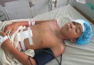 Nam sinh lớp 7 vỡ gan vì xe đạp bất ngờ gãy cổ