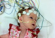 Động kinh - Nguy cơ cao sau chấn thương sọ não