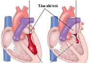 Phòng ngừa suy tim do hẹp, hở van tim