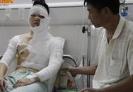 Nam sinh viên Hà Nội bị tạt axit lúc nửa đêm