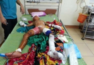 Đồ chơi phát nổ, bé trai 9 tuổi bị thương nặng