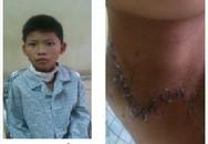 Bé trai 12 tuổi bị tấm tôn cứa đứt khí quản