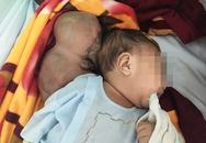Bé 2 tháng tuổi có 'đầu khổng lồ' vì chứng thoát vị não