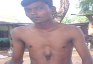 Sức sống kỳ diệu của chàng trai 18 năm mang quả tim nằm ngoài lồng ngực