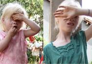 """Ký ức hãi hùng của hai đứa trẻ bị nghi là """"ma cà rồng"""""""