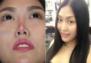 Phi Thanh Vân chia sẻ trải nghiệm hai lần làm mũi vì hết 'date'