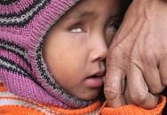 Vòng tay Nhân ái (MS 136): Đáng thương bé gái mù 2 mắt vì không tiền đến viện