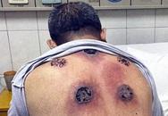 Kinh sợ lưng thủng lỗ chỗ phải nhập viện cấp cứu vì giác hơi