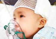 Đau lòng bé gái 3 tuổi bị chấn thương sọ não do ngồi xe đẩy đi siêu thị