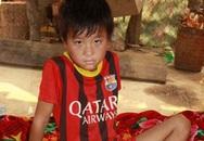 Cậu bé bị hoại tử vết thương 'xin được cắt chân'