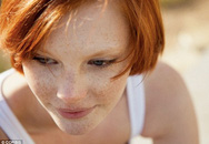 Nhận diện những người dễ bị ung thư da hơn người khác