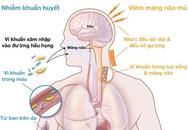 Dấu hiệu cảnh báo bệnh viêm não mô cầu