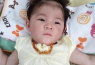 Yêu thương chính là điều kỳ diệu giúp bé gái 14 tháng nặng 3,5kg thay da đổi thịt như thế này!