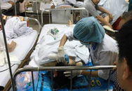 Chồng chém dao vào mặt vợ: Đứt 4 ngón tay, vỡ xương hàm