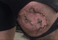Bị bỏng nặng do iPhone 6 bỗng nhiên phát nổ trong túi quần
