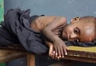 Xót xa hình ảnh những đứa trẻ châu Phi gầy trơ xương vì đói