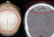 Bệnh nhân nứt sọ, tụ máu não 2 ngày mà không hay biết