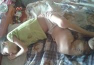 """Bé gái 7 tuổi """"chân voi"""" sắp cụt chân vì không có tiền phẫu thuật"""