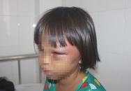 Bé gái 7 tuổi nhập viện với hàng loạt vết thương bất thường