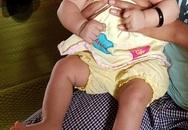 Bất ngờ phát hiện thêm 2 em bé bị chứng đầu nhỏ