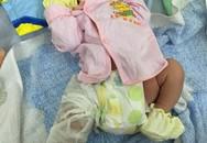 Trẻ sơ sinh gãy xương đùi sau mổ đẻ: Xử nghiêm kíp gây ra sai sót
