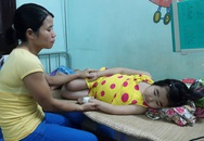 Bé gái bị hội chứng thận hư phải nhập viện cấp cứu vì bị phù nặng