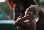 Ngoài chứng đầu nhỏ ở trẻ, virus Zika còn gây các bệnh gì?