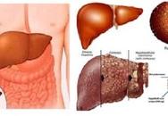 Cách phát hiện mắc bệnh gan nhanh chóng chỉ sau 10 phút