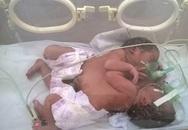 Bộ trưởng Bộ Y tế trợ giúp 10 triệu đồng cho cặp song sinh dính liền và thai phụ ung thư