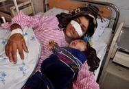 Nghẹn lòng bức hình người vợ bị chồng cắt mũi, đứa con khóc thét nằm bên
