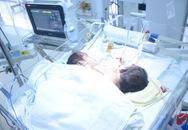 Cặp song sinh dính liền ở Hà Giang: Mẹ xuất viện thì con lìa đời