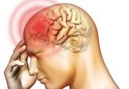 Hà Nội: Sẽ tư vấn trực tuyến cách phòng tránh bệnh não mô cầu