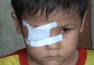 Khát khao đến trường của cậu bé bị ung thư mắt