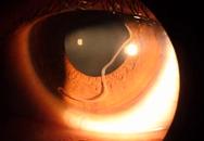 Cách nhìn mắt biết ngay trẻ bị nhiễm giun đũa