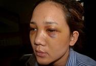 """Vụ thiếu uý công an đánh bạn gái chấn thương sọ não: """"Anh ấy xúi em khai sai sự thật"""""""