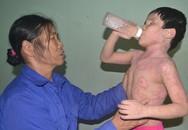 Đứa con tội nghiệp của cựu quân nhân Trường Sa bệnh ngày càng nặng