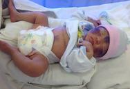 Em bé chào đời 36 giờ bị vỡ dạ dày hiếm gặp