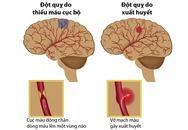 Nhiều người Việt có nguy cơ bị đột quỵ vì chủ quan với bệnh mỡ máu