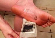 Sử dụng miếng dán thải độc, mất luôn da chân