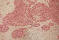Những bệnh da có ảnh hưởng tới âm đạo