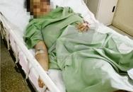 Cô gái bị bạn trai cũ giam cầm suốt 3 ngày, bắt uống nước xả vải, phun thuốc trừ sâu vào mặt