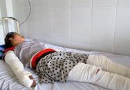 Nghi án 3 người bị thiêu sống: Cô gái trẻ bỏng nặng toàn thân