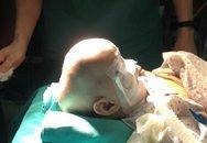 Bv Xanh Pôn: Phẫu thuật thành công hộp sọ biến dạng hình thuyền hiếm gặp cho bé 11 tháng tuổi