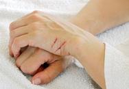 Người phụ nữ tử vong do nhiễm trùng máu từ vết xước ở tay